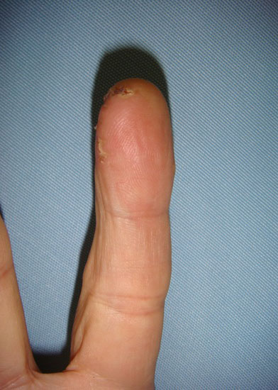 Finger Tumor Removed