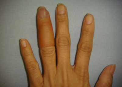 Finger prosthesis after finger tip injury