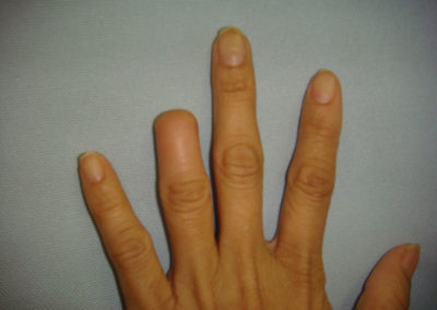 Finger tip injury & amputation