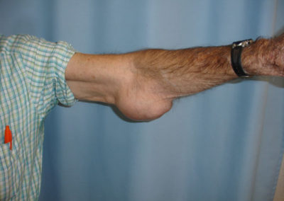 Left Elbow Tumor